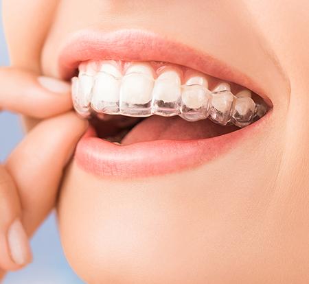 Orthodontie Lyon
